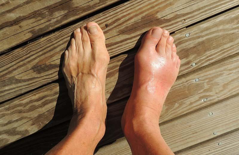 guta regim alimentar tratament semne radiologice de artroză a genunchiului